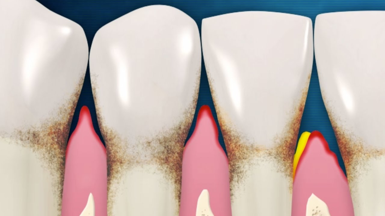 An Overview Of Gum Disease