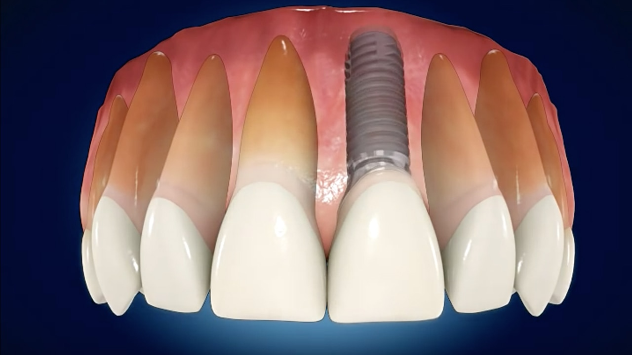 Why do I have tooth loss