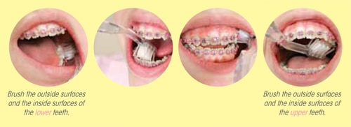 Protecting Your Healthy Smile While Wearing Braces