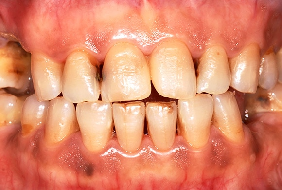 Mouth showing Early Carious Lesion