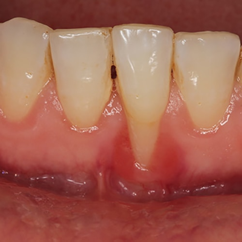 Periodontitis — localized loss of attachment