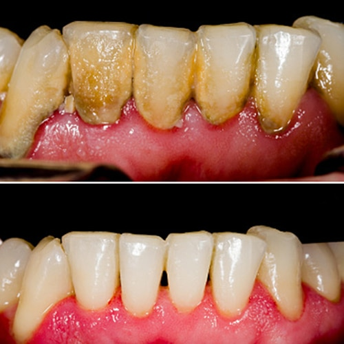 Generalized Loss Of Attachment And Gingival Recession