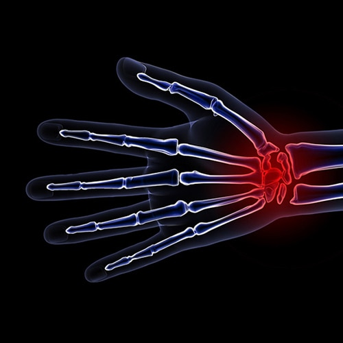 X-ray of hand with pain identified in red on the wrist